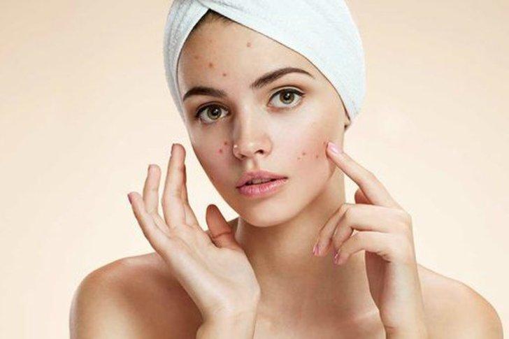 6 Produk Terbaik Untuk Perawatan Wajah Berjerawat!